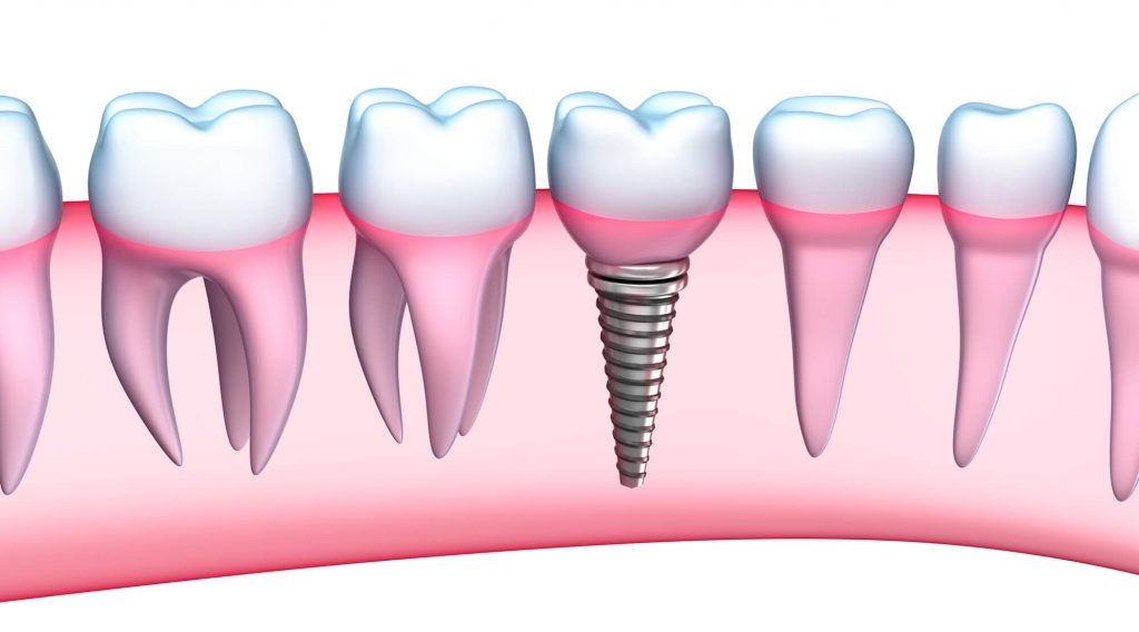 Where can I get Dental implants Weston?